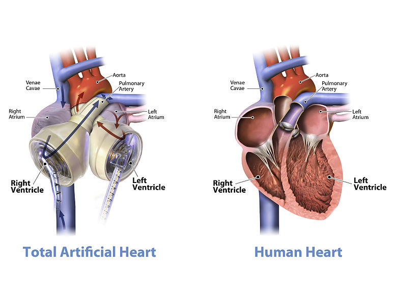"""Graphic of the SynCardia temporary Total Artificial Heart beside a human heart with call-outs."""