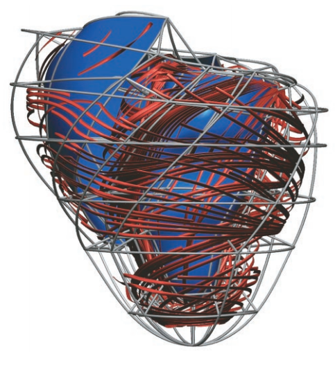 """Computer models of the heart incorporate detailed experimental information, both at the level of individual cells and at the level of anatomy. Here, a model developed by Peter Hunter's team at the University of Auckland portrays the changing orientation of the heart's muscle fibers from the outside to the inside of the heart wall. The spiraling of the fibers is believed to affect the flow of electric signals through the heart. Courtesy of Peter Hunter, PhD, Bioengineering Institute, The University of Auckland, New Zealand.""--Via."