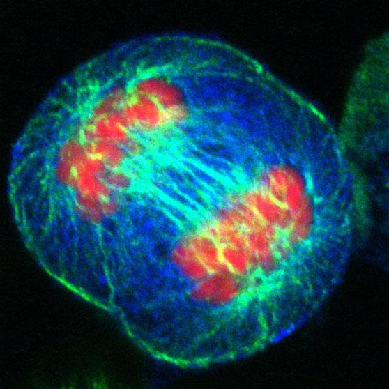HeLa Cell during Anaphase. Credit: Matthew Daniels/Wellcome Images